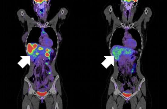 Die Metastasen in der Leber (links) verschwanden bei diesem Patienten nach der Behandlung (rechts).