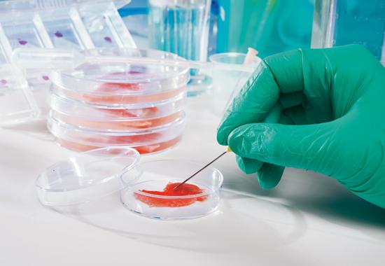 Großer Effekt: Bereits aus einer kleinen Gewebeprobe können die Biotechnologen enorme Mengen an kultiviertem Fleisch gewinnen.